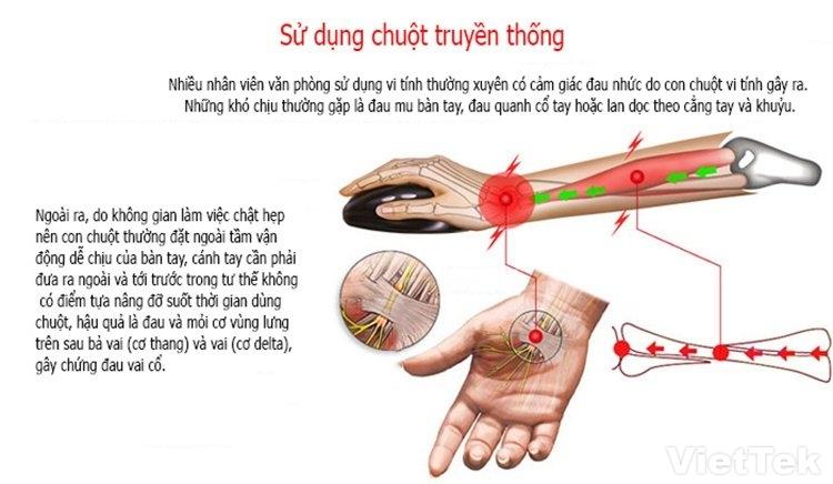 chuot doc wowpen jsy12 3 - Chuột dọc Wowpen jsy12 kiểu dáng đặc biệt hạn chế bệnh đau khớp